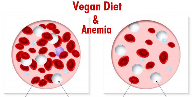 Your Vegan Diet And Risk Of Anemia: Truths, Myths, And What Your Should Do