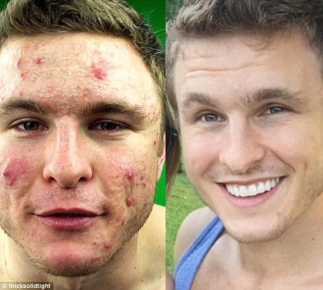Bodybuilder Reveals How A Vegan Diet Helped Him Finally Cure His Severe Cystic Acne!