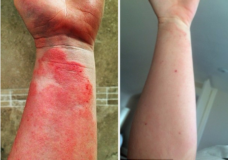 How A Vegan Diet Finally Healed This Severe Eczema Case