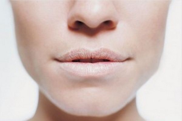 5 Signs of Nutrient Deficiencies That Are Written All Over Your Face